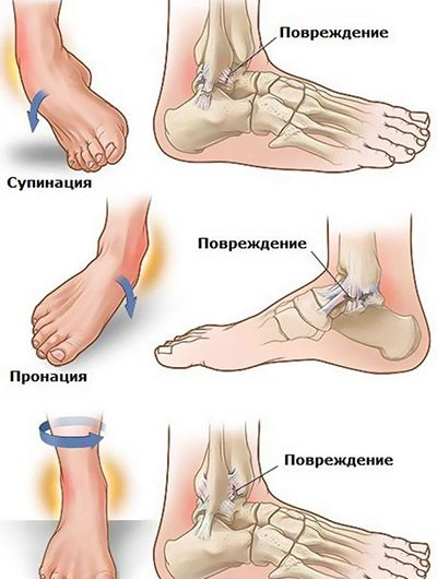 28++ Wrapping a swollen ankle trends