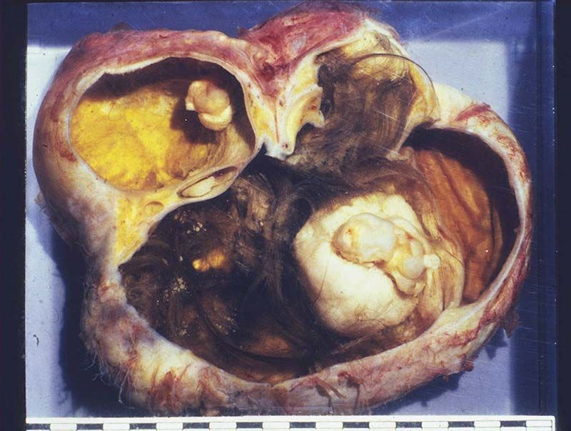Pin by Meta Morphosis on Health   Dermoid cyst Cysts Ovarian