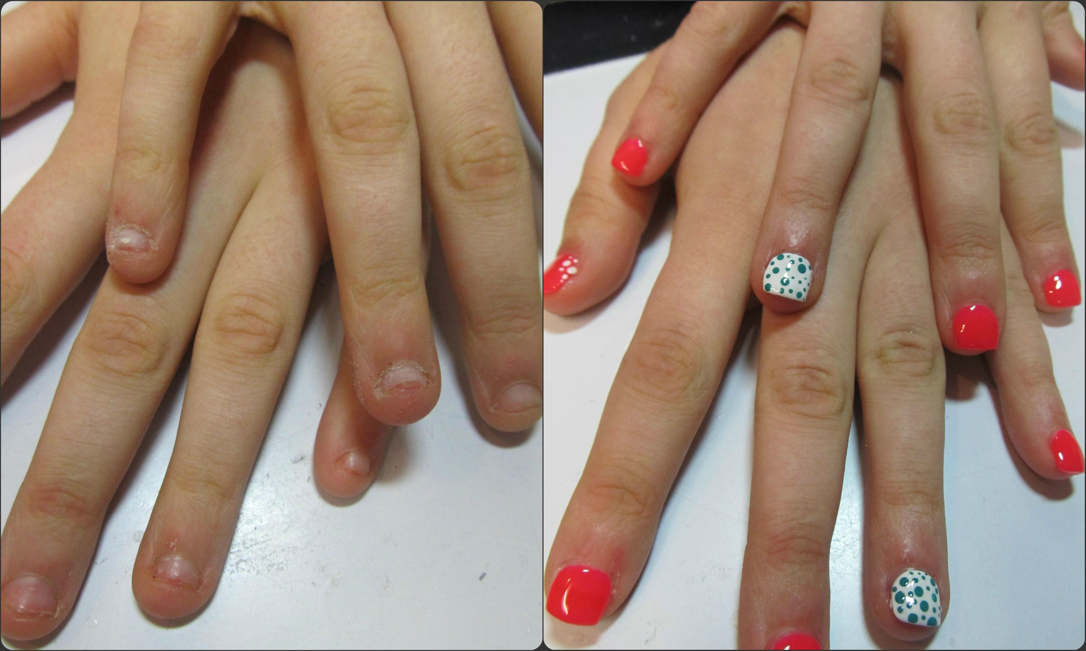 Short and bitten nails before and after lengthening with sculpted ...
