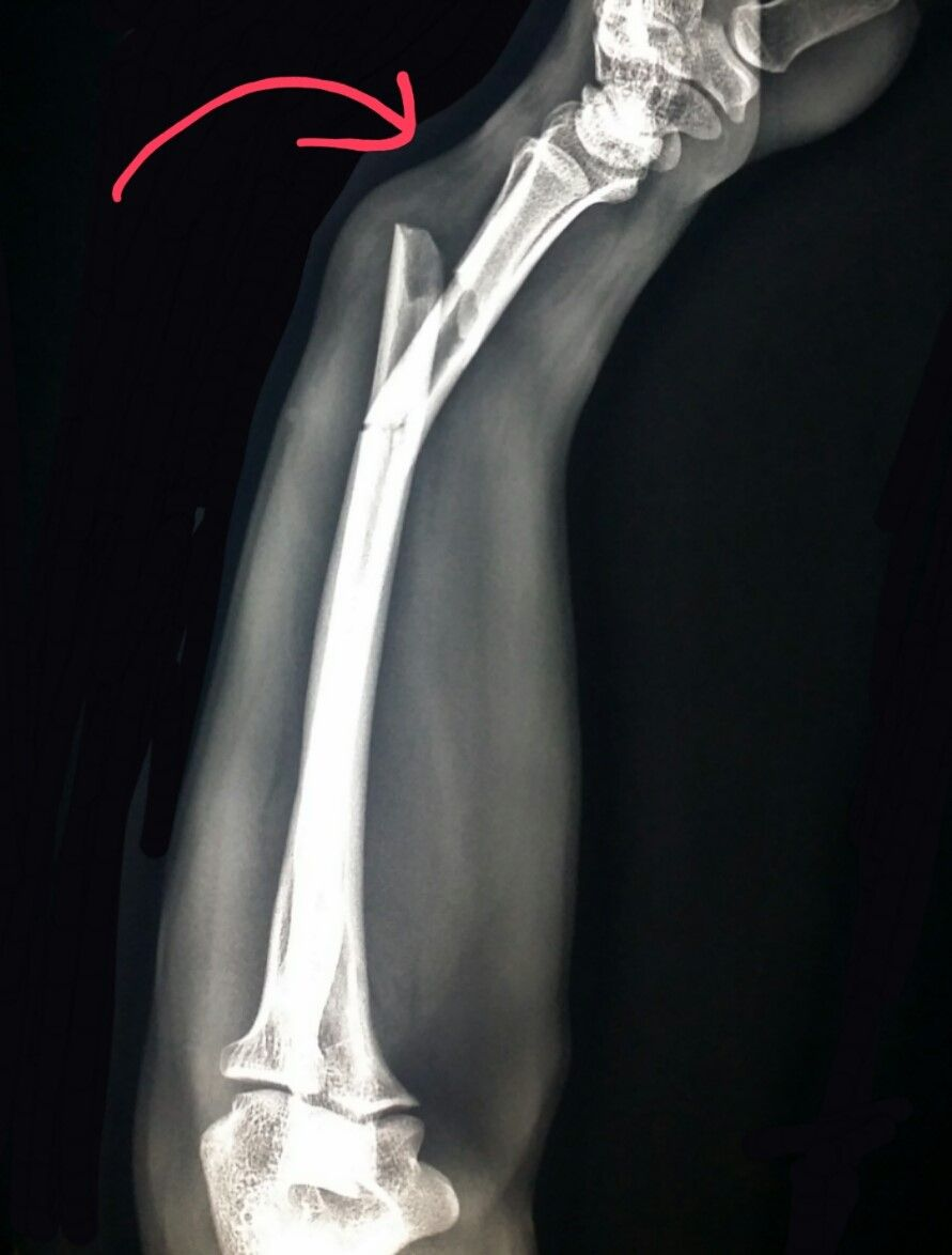 Forearm #xray shows severely #angulated #fractures of the #radius ...
