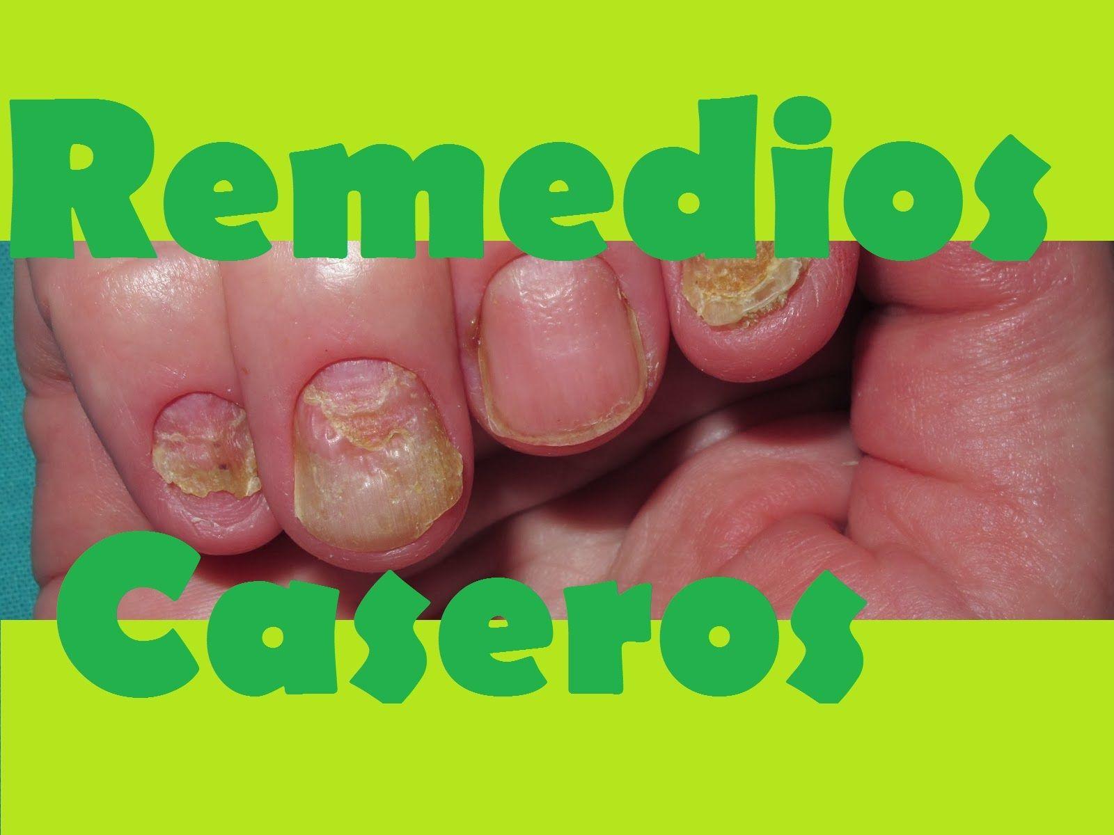 Tratamiento Con Bicarbonato Para Los Hongos en las Uñas Sin ...