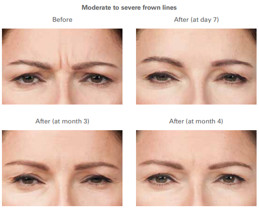 Botox Injections For Frown Lines Botox Injections Botox Facial