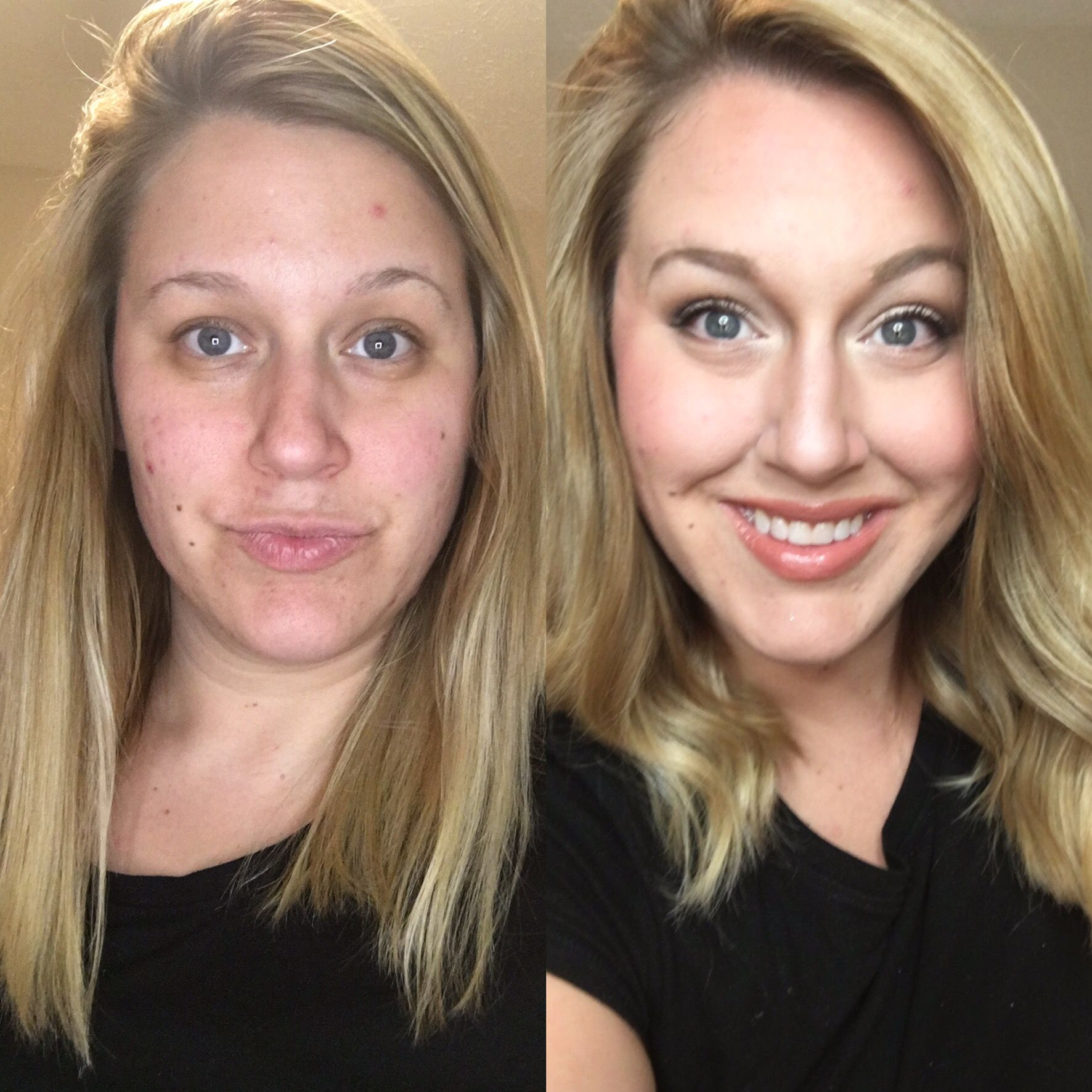 Before And After Limelight By Alcone Face Need I Say More Natural Skin Care Routine Face Makeup Before And After