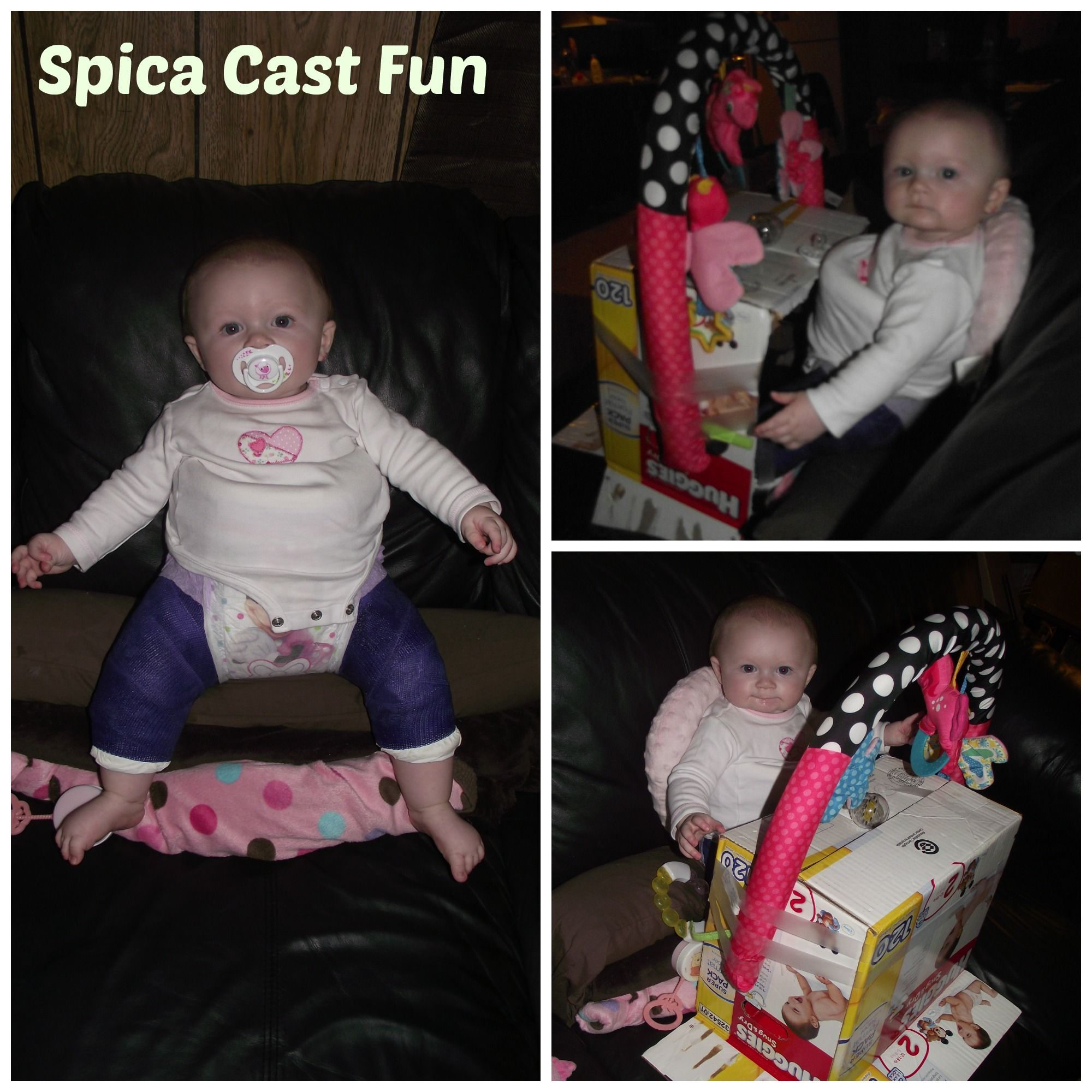 My Daughter Is In A Spica Cast For Hip Dysplasia This What We Came