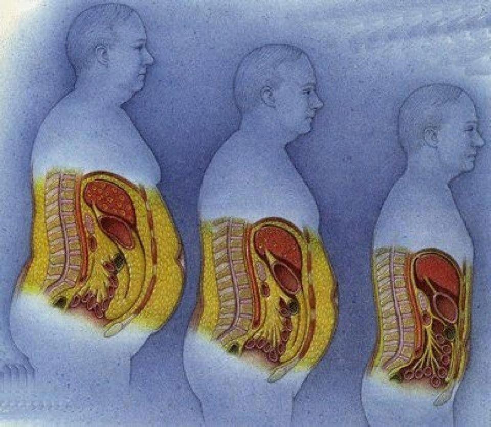 ha zsírvesztés fogyókúrás tippek az utazóknak