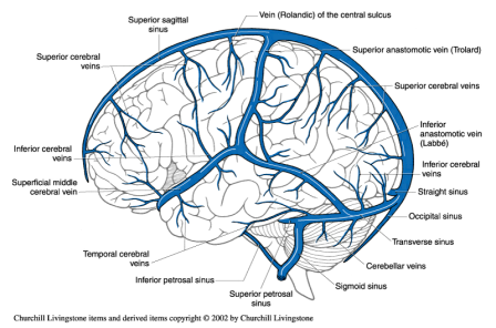veins of brain - Google Search | xray | Pinterest | Brain