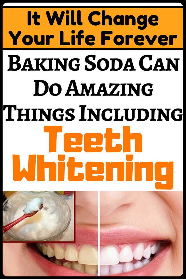 Now Baking Soda Can Be Found In Many Toothpastes And Teeth