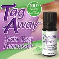 Tag Away Skin Tag Remover  Get rid of skin tags the fast and easy way with this   Remedies Photo Blog Tag Away Skin Tag Remover  Get rid of skin tags the fast and easy wa...