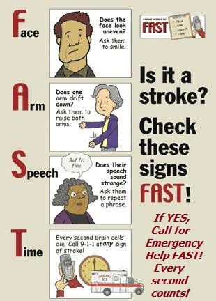 Is it a stroke? Check these signs: F A S T  | Neurology