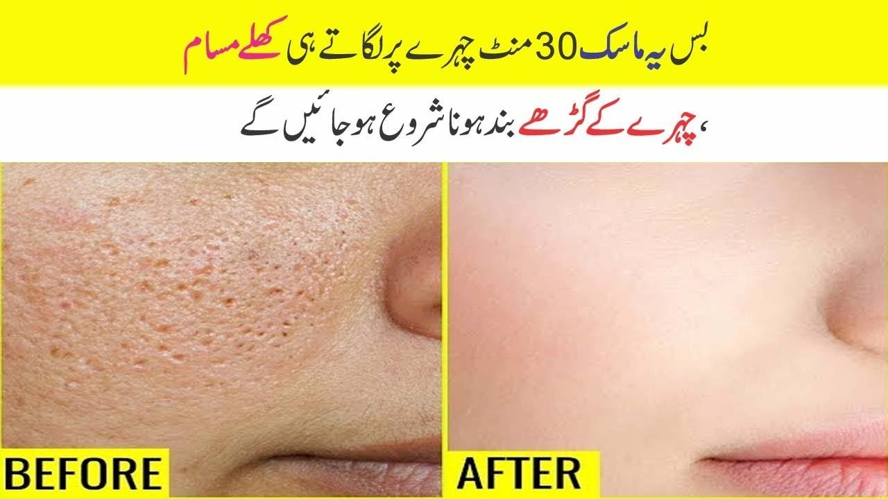 How To Shrink Tight Large Open Pores On Face At Home In Urdu Hindi Open Pores On Face Pore Salt Face Scrub