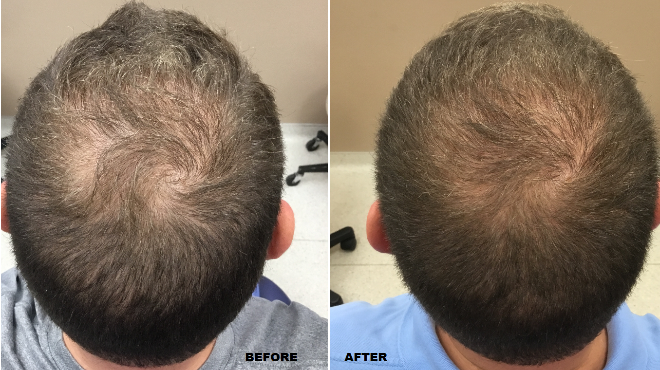 Check Out Our Latest Before And After For Prp Hair Restoration Prp For Hair Loss Prp Hair Hair Restoration