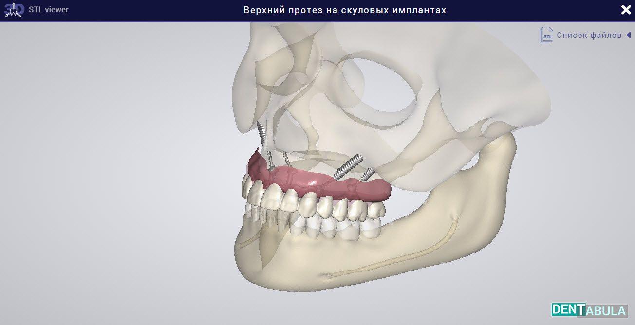 ✅Верхний протез на скуловых имплантах 3D Просмотреть можно