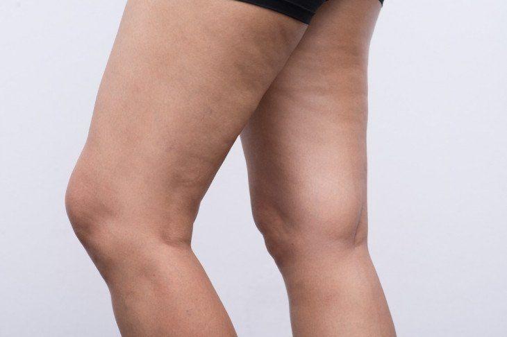 dieta per le gambe di ritenzione di liquidi