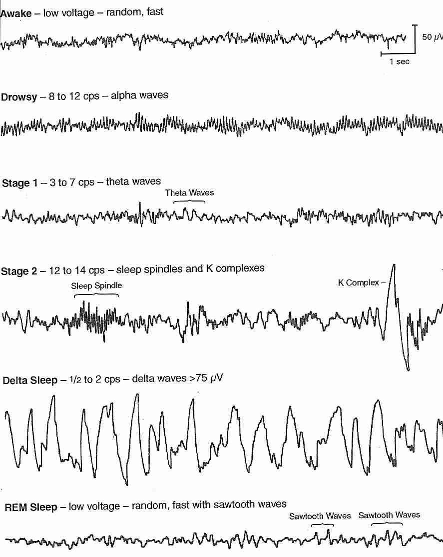 Fibromyalgia and Sleep - 101 - Fibromyalgia Center ...