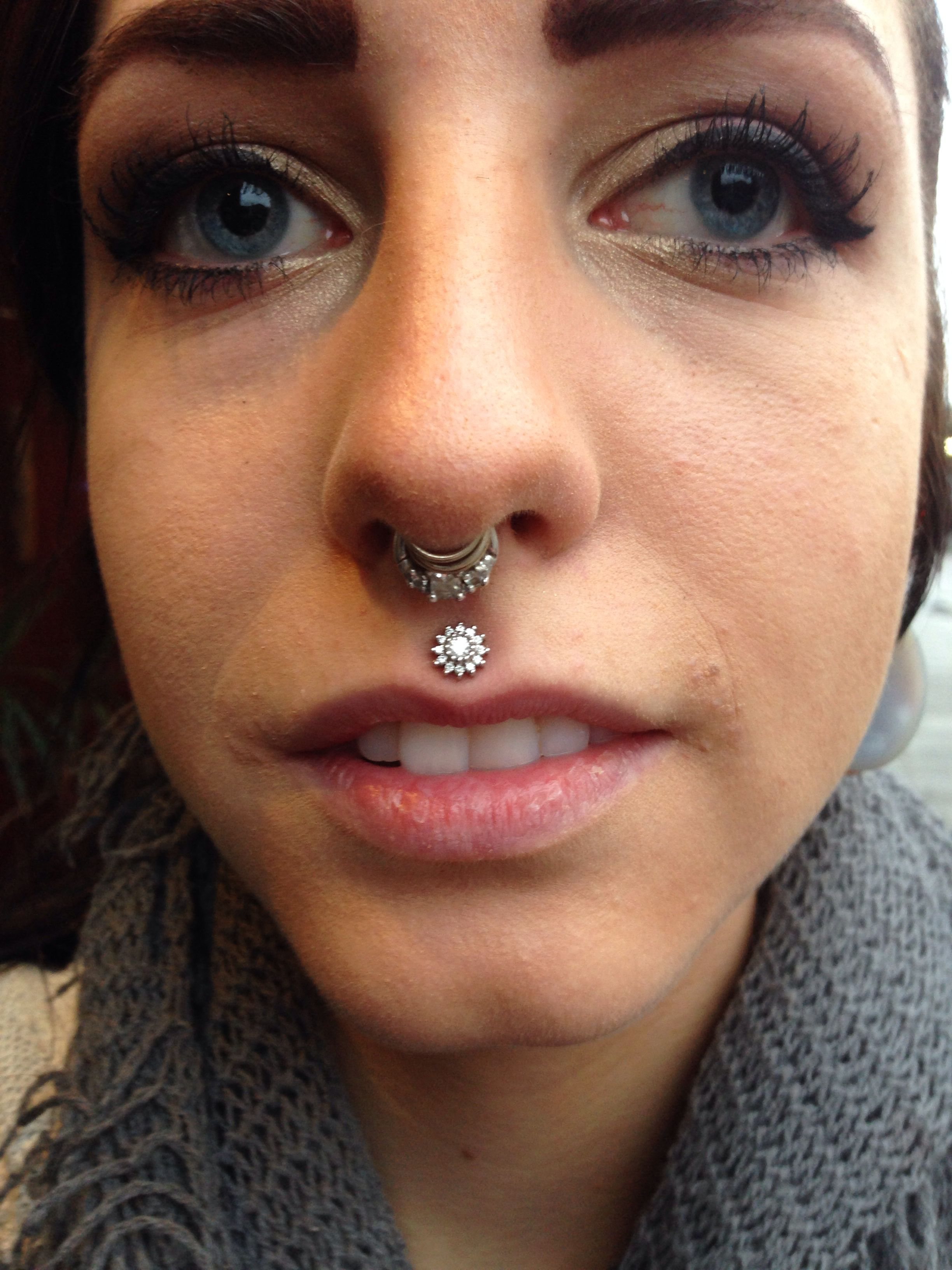 Nose piercing gone wrong  Healed philtrum piercing done by me at The Shamanus Den Binghamton