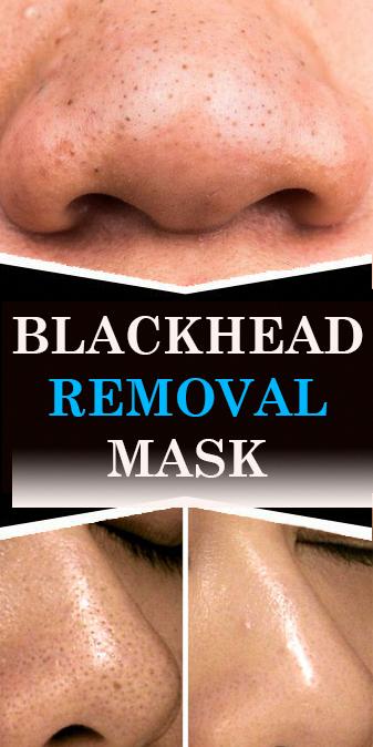 e3ce9decba804f14c9b398755b63a06b - How To Get Rid Of Dirt Stains On Skin