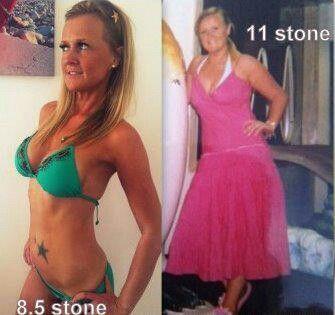 Anant ambani weight loss surgery photo 2