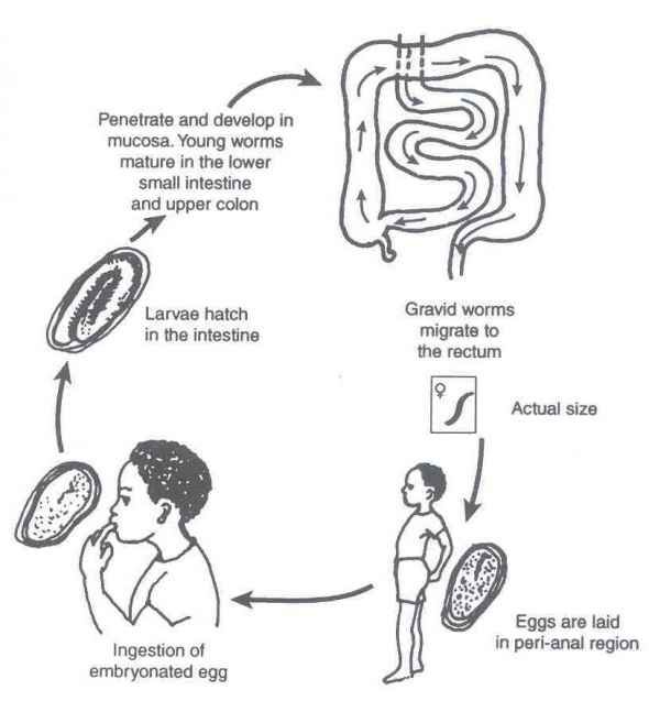 Life Cycle And Transmission Of Pinworm Health Pinterest