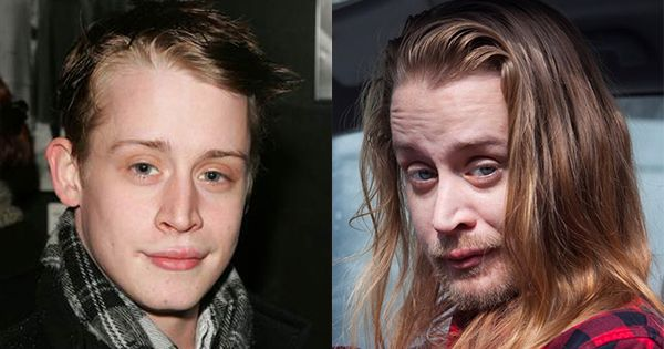 Before & After Drugs (Meth): The Horrors of ...