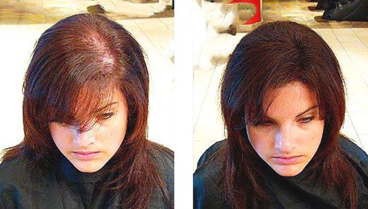 علاج تساقط الشعر تساقط الشعر الاسباب والعلاج أسباب تساقط الشعر علاج تساقط الشعر بالثوم Help Hair Loss Hair Loss Remedies Hair Loss Remedies Women