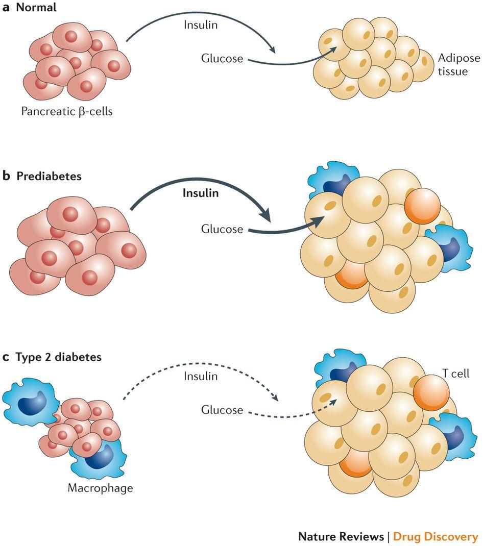 Diagram On How Diabetes Affects The Body Diabetes Type 1 Diabetes Type 1