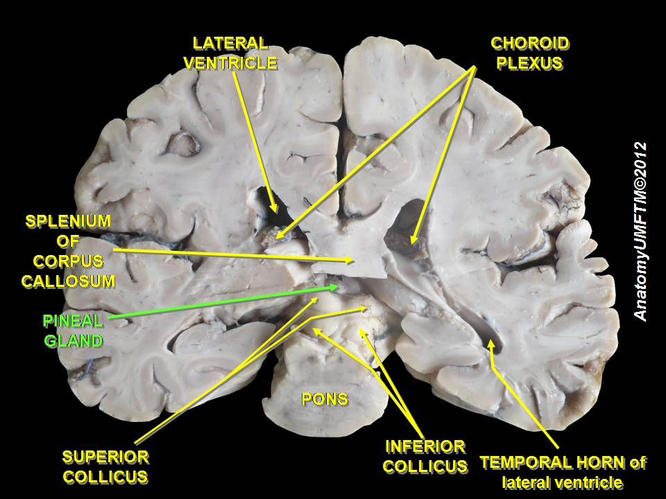 Slide4ff - Pineal gland - Wikipedia, the free encyclopedia   Anatomy ...