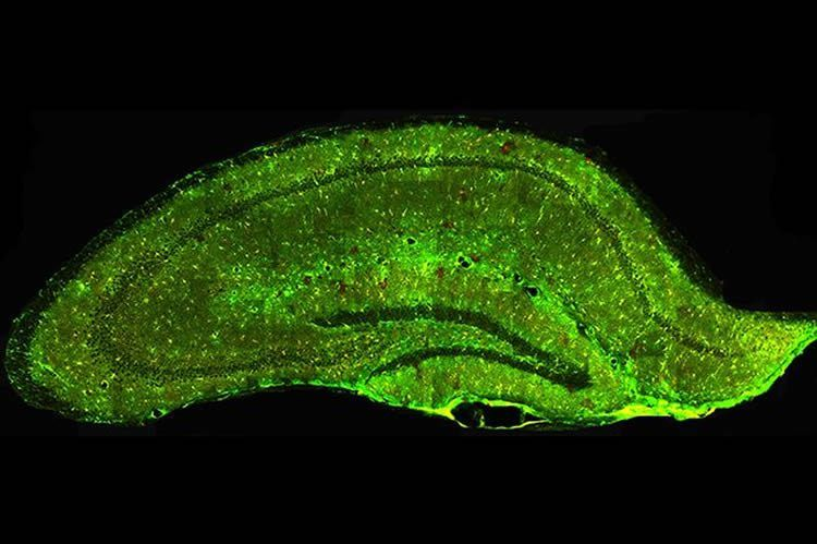Shedding Light on a Cell That May Contribute to Alzheimer's and ALS