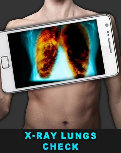 X-Ray Lungs Check <br>Chest X-ray Inspection - this app is a joke game where you can do an X-ray light a friend or loved one, check out how they are sick and dirty! Just point the phone at a friend's press connect the camera, the camera will connect automatically! Then move to the chest area per person, and then start the scan! After the pass band of x-ray scan will give real rengenvskogo photo, which can show the person and make fun if it were a real chest X-ray! <br>This application does…