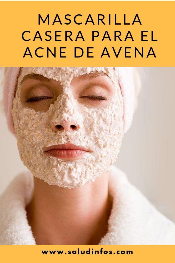 mascarillas caseras para la cara acne