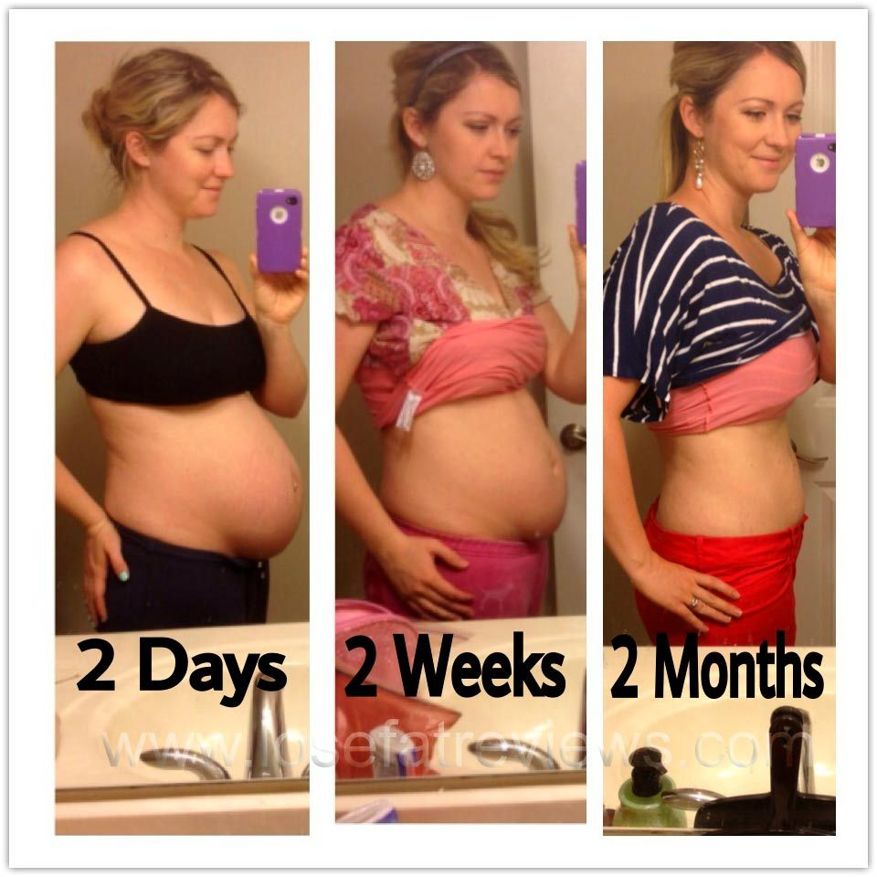 is it possible to lose more weight after pregnancy