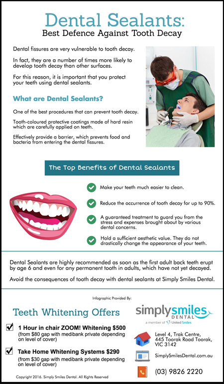 Dental Sealants – Best Defence Against Tooth Decay simplysmilesdental.com.au