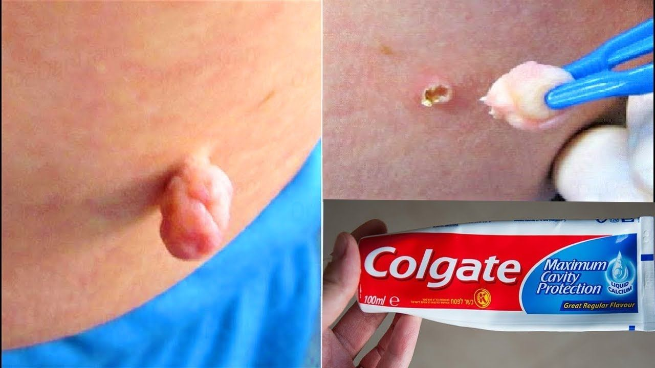 REMOVE SKIN TAG IN 1 NIGHT OF APPLYING TOOTHPASTE | Home