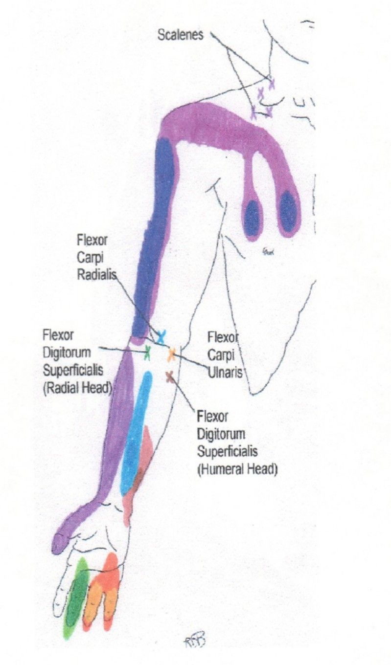 Neck Shoulder Arm And Hand Trigger Point Chart 2 Copyright American Academy Of Manual Medicine