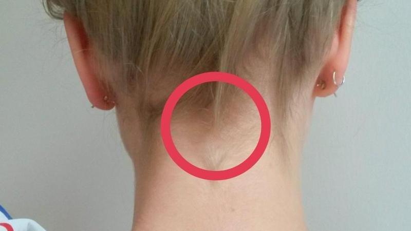 eiswürfel im nacken