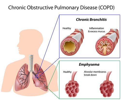 Home Remedies For Bronchitis Tons Of Useful Info In 2019 Chest Congestion Remedies Home