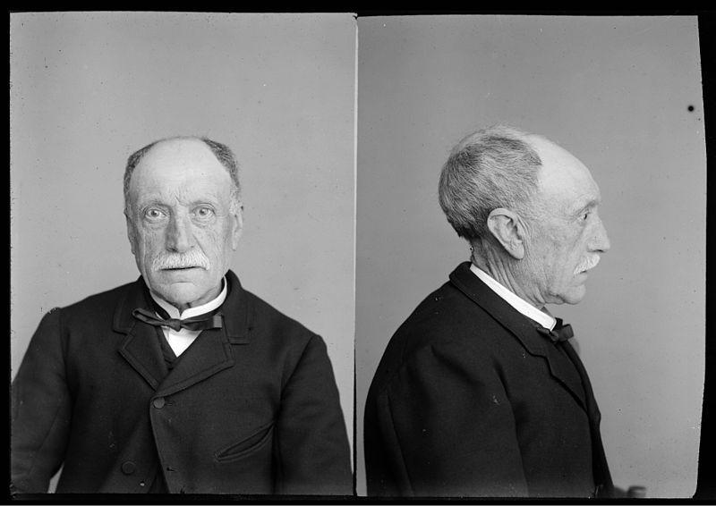 Eugène Trutat (1840-1910): Tête déformée-D. toulousaine - Fonds Trutat - MHNT.PHa.1521.05.202