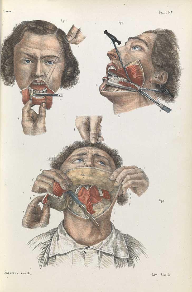 También de 1841, muestra cómo era que los médicos reconstruir la ...