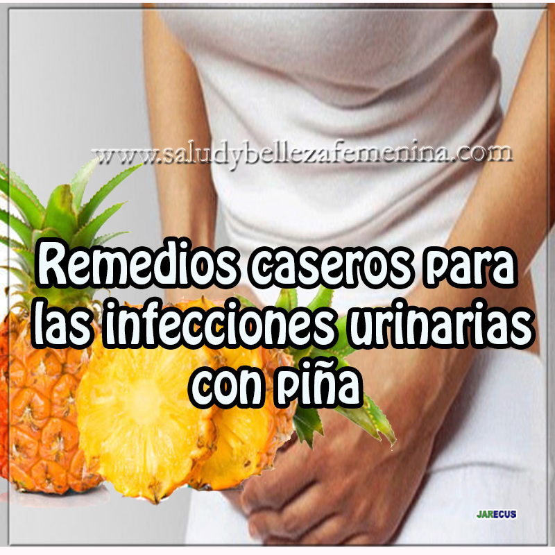 Remedios Caseros Para Las Infecciones Urinarias How To Stay Healthy Health Health Fitness