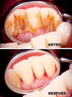 Profilaxis dental | Limpieza dental con ultrasonido, Limpieza ...