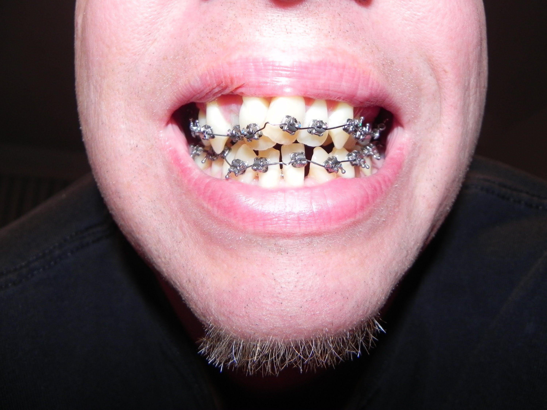 braces for adult teeth