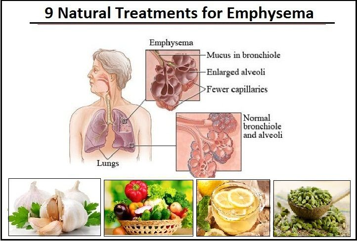 9 Natural Treatments For Emphysema To Recover Lung Function