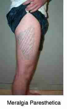 Meralgia paresthetica is caused by a trapped nerve in the groin