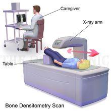 31+ Osteoporosis lumbar spine icd 10 viral