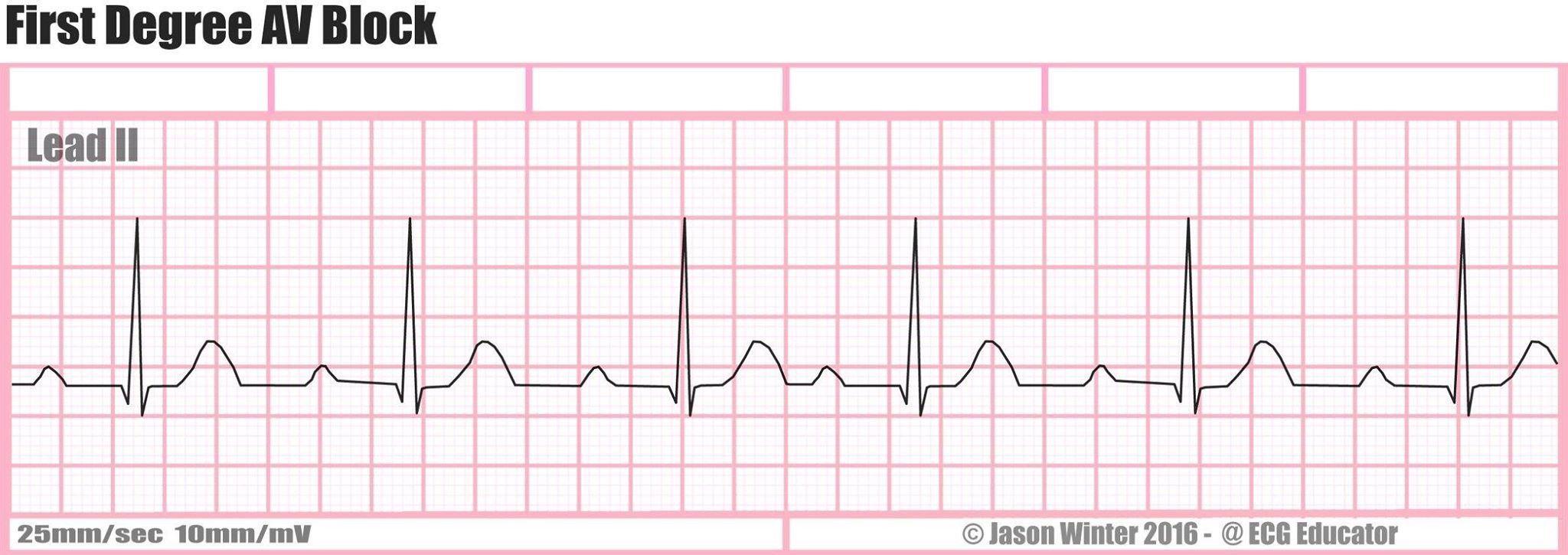 Pin by Jason Winter (ECG Educator). on Six second ECG