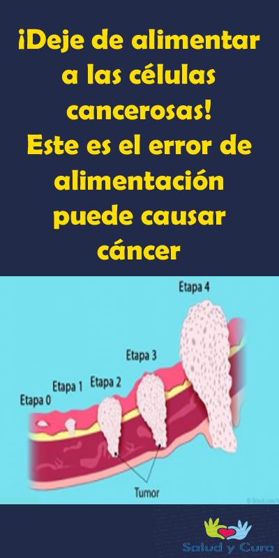 Deje De Alimentar A Las Celulas Cancerosas Este Es El Error De Alimentacion Puede Causar Cancer Celulas Cancerosas Consejos Para La Salud Fibromas