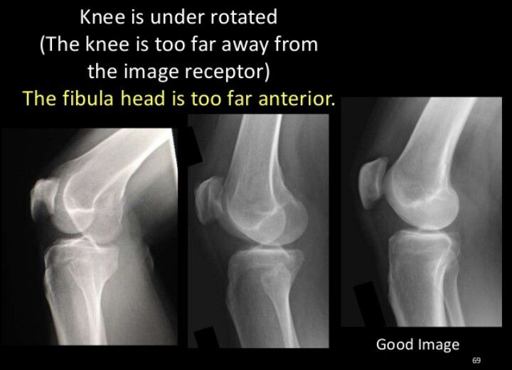 Good lateral knee | Rad tech | Pinterest | Rad tech, Radiology and ...