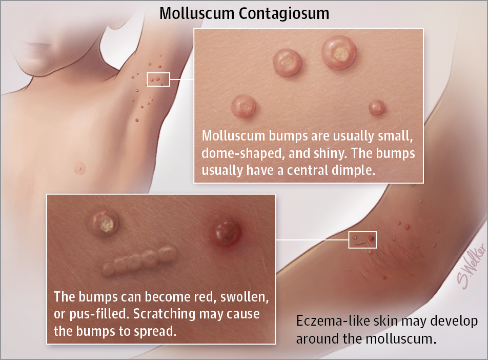 Flesh Colored Skin Cancer Pictures