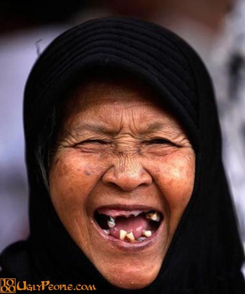 Image result for ugly girl with chipped teeth