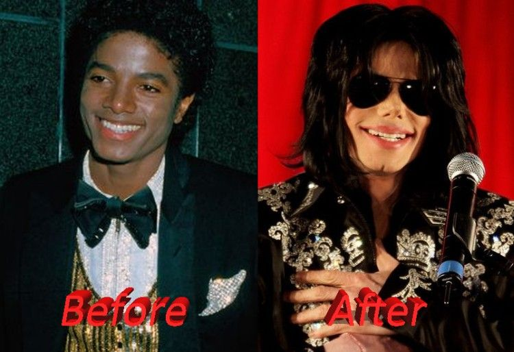 Celebrity before and after plastic surgery plastic