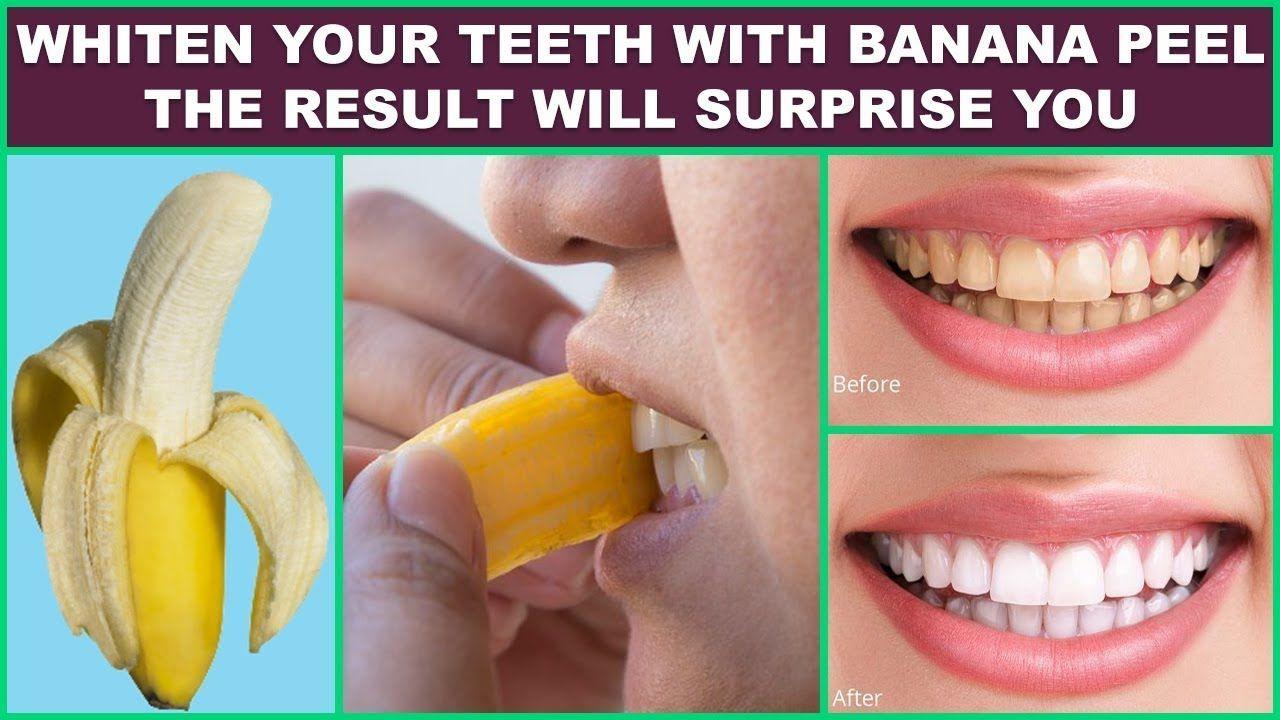 Banana Peel For Teeth Skinwhiteningbeforeandafter Skin Whitening